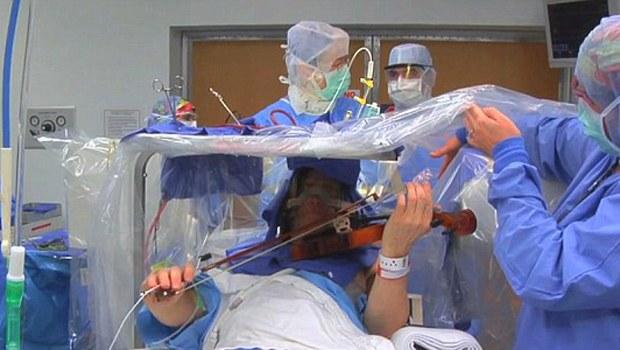 beyin ameliyatı keman